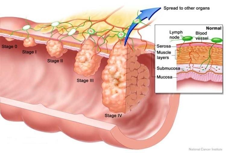 Ung thư trực tràng sống được bao lâu?