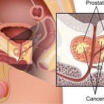 Tìm hiểu về loại ung thư phổ biến nhất ở nam giới