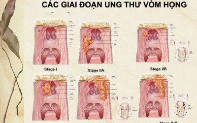 Ung thư vòm họng giai đoạn cuối sống được bao lâu?