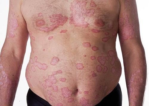 Bệnh vẩy nến là một trong những bệnh ngoài da thường gặp ở Việt Nam cũng như nhiều nước trên thế giới.