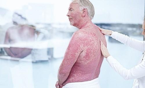 Triệu chứng đặc trưng của bệnh vẩy nến là những mảng dày, đỏ được phủ bởi các lớp vảy trắng hay bạc.