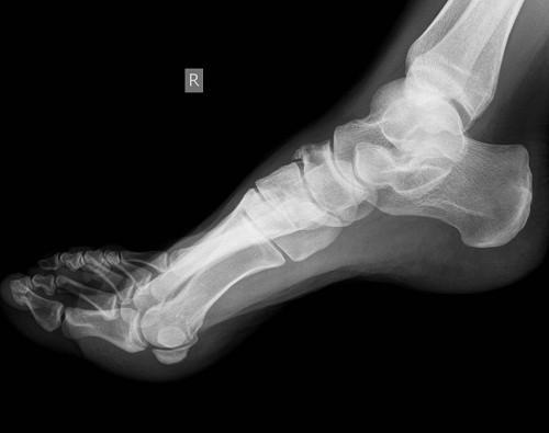 Chụp X - quang giúp phát hiện được hình ảnh lắng đọng tinh thể urate tại sụn khớp ở những cơn gút cấp đầu tiên hoặc ngay cả khi chưa có triệu chứng lâm sàng.