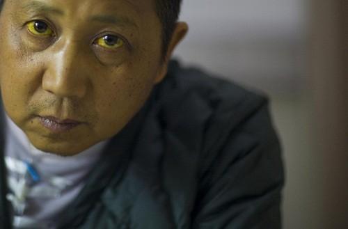Giai đoạn cuối của xơ gan gây ra các triệu chứng như vàng da, vàng mắt.