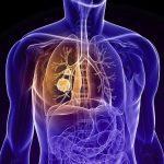 Bệnh phổi tắc nghẽn mạn tính: Hiểu lầm và sự thật
