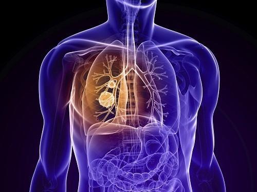 Bệnh phổi tắc nghẽn mạn tính làm suy giảm chức năng hô hấp, hạn chế khả năng hoạt động hàng ngày và làm giảm chất lượng cuộc sống bệnh nhân.