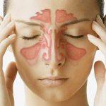 Bện viêm xoang cấp: Không nên coi thường