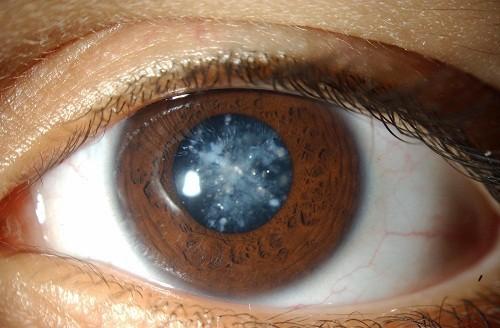 Một bệnh về mắt ở trẻ sơ sinh nhưng khá hiếm gặp là đục thủy tinh thể.