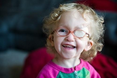 Mắt lười hay mắt nhược thị (Amblyopia) là tình trạng thị lực ở một mắt phát triển không bình thường, khiến thị lực suy giảm.