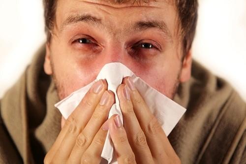 Đôi khi những người đau đầu còn bị sưng quanh mắt hoặc mũi.