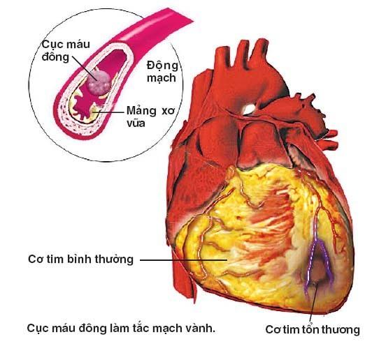 cach-dieu-tri-benh-dong-mach-vanh.jpg1