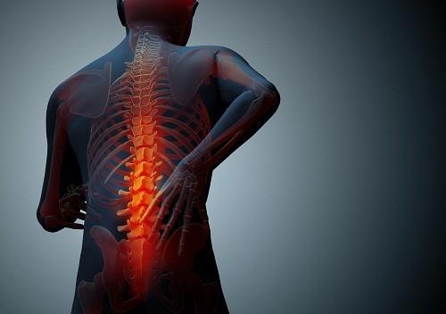 Đau lưng ở những người bị loãng xương, hoặc mật độ xương thấp, thường do gãy cột sống.