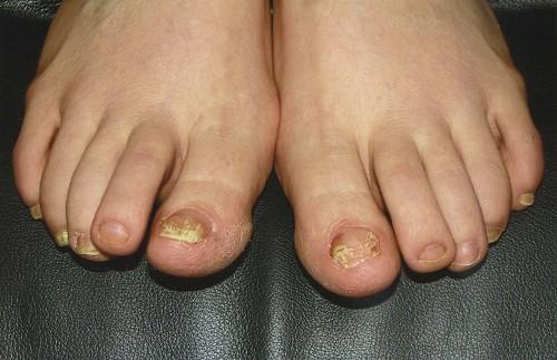 Chữa nấm móng chân ở trẻ là một quá trình lâu dài, phức tạp và đòi hỏi sự kiên trì..