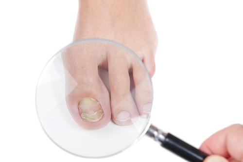 Bố mẹ nên hỏi ý khiến bác sĩ nếu đang quan tâm tới việc thử một phương pháp điều trị mới cho bệnh nấm móng chân ở trẻ. .