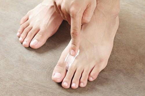 Điều trị truyền thống cho móng chân nấm ở trẻ em thường bao gồm thuốc chống nấm dạng bôi và dạng uống. Các
