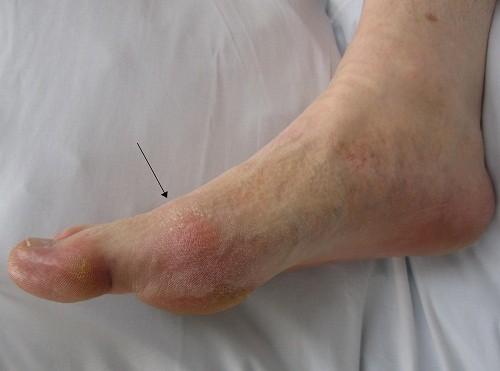 Các khớp ở bàn chân bị gút tấn công sẽ bị sưng lên và tấy đỏ.