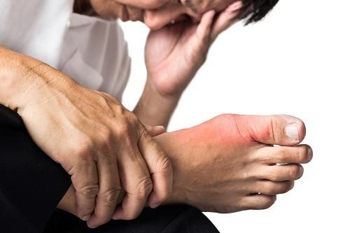 tiêu chuẩn chẩn đoán gout