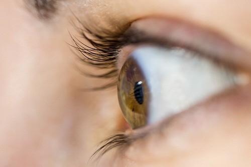 Bệnh tăng nhãn áp có thể gây tổn thương dẫn thần kinh thị giác dẫn đến mù lòa.