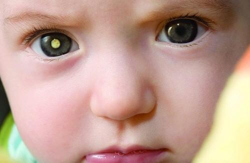 U nguyên bào võng mạc là nguyên nhân gây mù lòa và tử vong ở trẻ em.