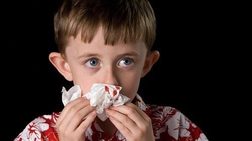 Chảy máu mũi hay chảy máu cam là tình trạng xuất huyết ở đường mũi, xảy ra khá phổ biến trong cuộc sống hàng ngày.
