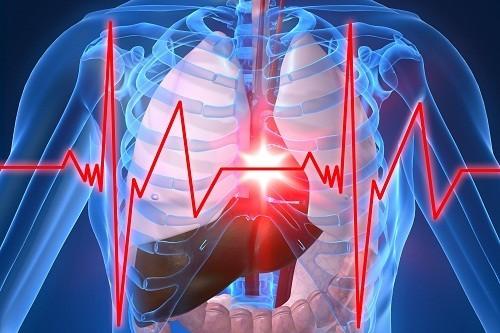 . Buồn nôn, nôn và chóng mặt là triệu chứng phổ biến của một cơn nhồi máu cơ tim.