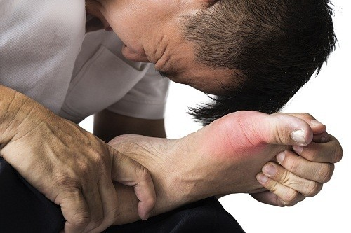 Viêm khớp do bệnh gút cũng là một nguyên nhân gây đau khớp đột ngột.