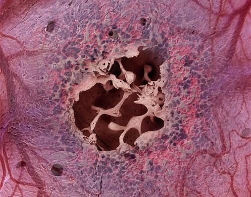 Một nguyên nhân gây thiếu máu khác thường gặp là do ảnh hưởng của những bệnh liên quan đến tủy xương như ung thư máu...