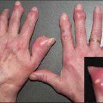 Tìm hiểu về bệnh gout