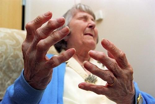 Các triệu chứng chính của bệnh viêm khớp dạng thấp là đau, cứng và sưng các khớp bị ảnh hưởng.