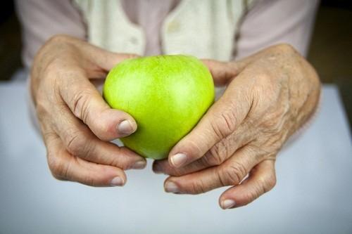 Khi viêm khớp dạng thấp ngày càng trở nên nghiêm trọng hơn, bàn tay hoặc bàn chân của người bệnh bị biến dạng