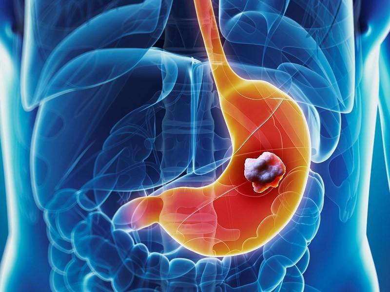 Triệu chứng ung thư dạ dày giai đoạn cuối