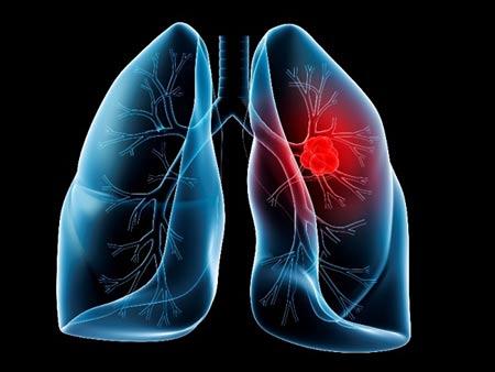 Ung thư phổi là bệnh ung thư rất nguy hiểm, vì bệnh khó phát hiện sớm cũng như điều trị khó khăn hơn.