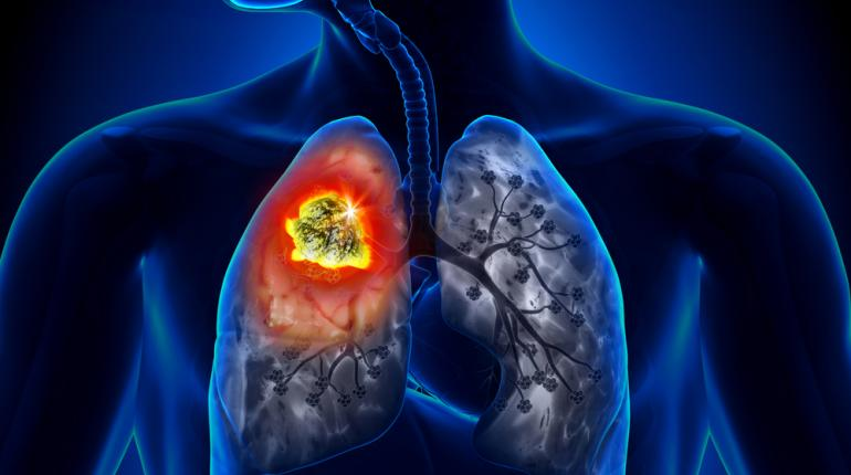 Ung thư phổi là bệnh ung thư nguy hiểm nhất vì thường phát hiện muộn và tỷ lệ tử vong cao.