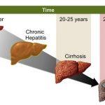 Đề phòng nguy cơ ung thư gan khi bị viêm gan C