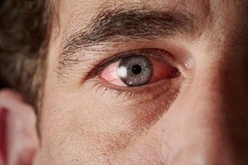 Một bệnh khác liên quan tới viêm khớp dạng thấp là viêm thượng củng mạc, gây đỏ mắt và khó chịu cho người bệnh.