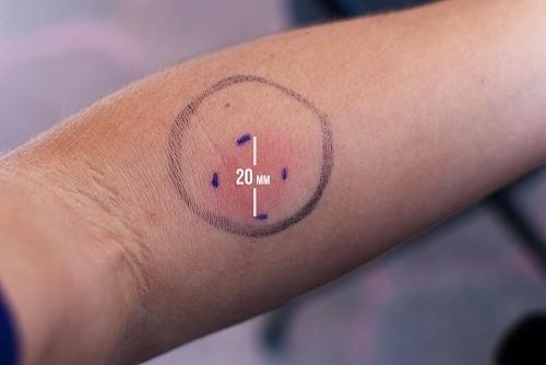 Người bệnh cần thông báo cho bác sĩ biết nếu trước đây đã có phản ứng nghiêm trọng với xét nghiệm lao qua da.