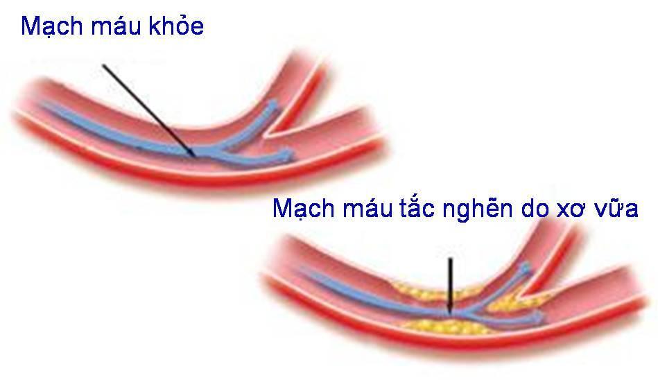 xo-vua-dong-mach-nguyen-nhan-khoi-phat-benh