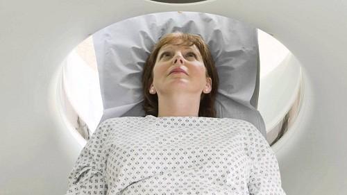 Chưa có nghiên cứu nào cho thấy chụp CT có thể gây ra những tác hại lâu dài.