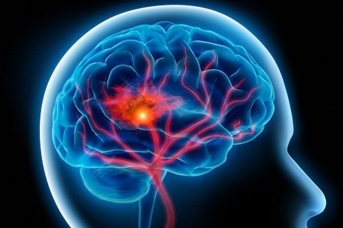 Theo thống kê đột quỵ là 1 trong 3 nguyên nhân gây tử vong cao sau tim mạch và ung thư.