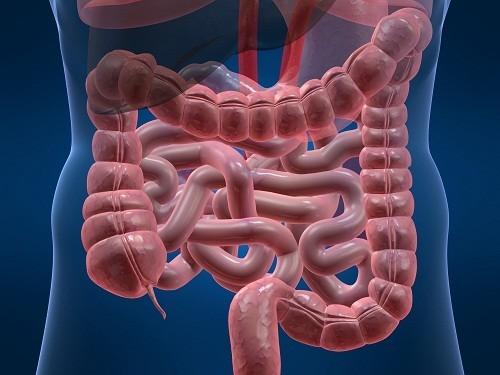 Bệnh Crohn - đặc trưng bởi tình trạng viêm mạn tính của ruột, cũng có thể là nguyên nhân gây rò hậu môn.