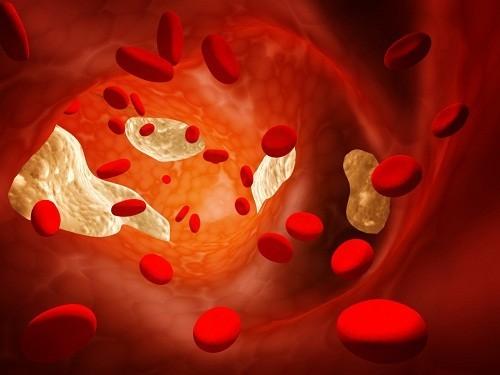 Nhiều nghiên cứu khoa học đã chỉ ra mối liên hệ chặt chẽ giữa nguy cơ mắc bệnh tim mạch và nồng độ cholesterol trong máu.