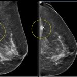 Hướng dẫn chị em tầm soát ung thư vú hiệu quả