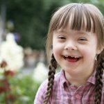 Tìm hiểu về hội chứng Down