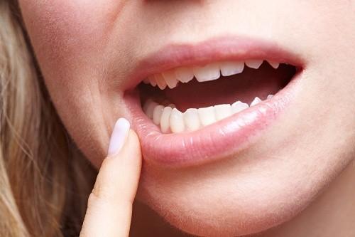 Bệnh tiểu đường có thể làm suy yếu khả năng của cơ thể trước sự tấn công của vi trùng, làm tăng nguy cơ nhiễm trùng ở nướu răng và xương ổ răng