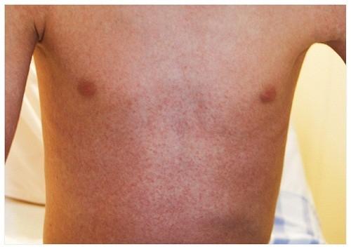 Triệu chứng của dị ứng thuốc thường gặp nhất là nổi mề đay, phát ban hoặc sốt.