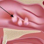 Nhận biết các triệu chứng polyp mũi
