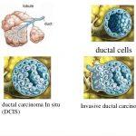 Ung thư vú giai đoạn đầu có chữa khỏi được không?