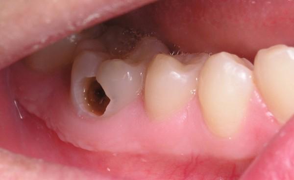 Sâu răng là bệnh răng miệng khá phổ biến hiện nay gây nhiều phiền toái cho người bệnh.