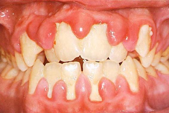 Viêm lợi là bệnh răng miệng thường gặp cần điều trị sớm tránh gây biến chứng nguy hại cho sức khỏe.