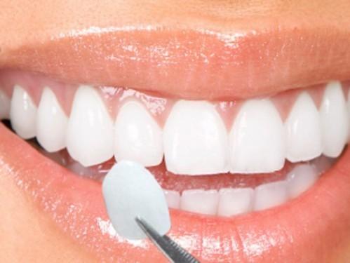 Công nghệ dán sứ trên bề mặt răng tại bệnh viện Thu Cúc giúp bạn nhanh chóng được sở hữu hàm răng sáng bóng như mong đợi.