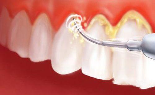 Công nghệ cạo vôi răng tiên tiến nhanh chóng làm sạch các mảng bám chân răng đem lại hiệu quả tối ưu.